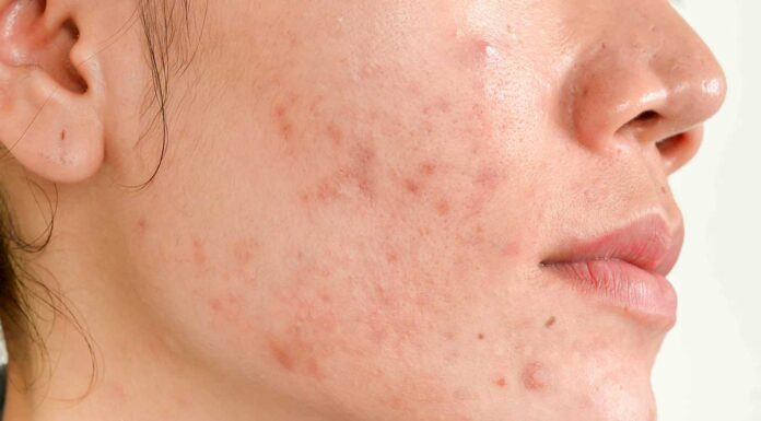 How To Get Rid Of Acne Scars?, acne scars, get rid of acne scars, skin care, acne treatment, How do I get rid of acne scars fast? | Lives In Style